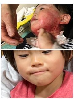 1歳後半と5歳の肌比較.JPG