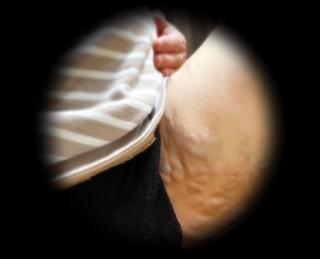妊婦静脈瘤鼠径部.jpg